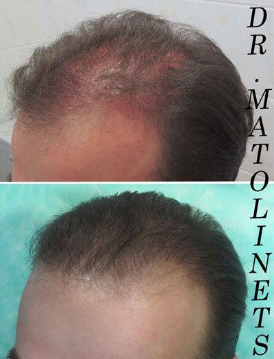 Пересадка волос ростов на дону цены