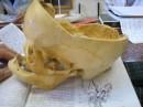 Трепанация черепа... Все натурально, никакой подделки.